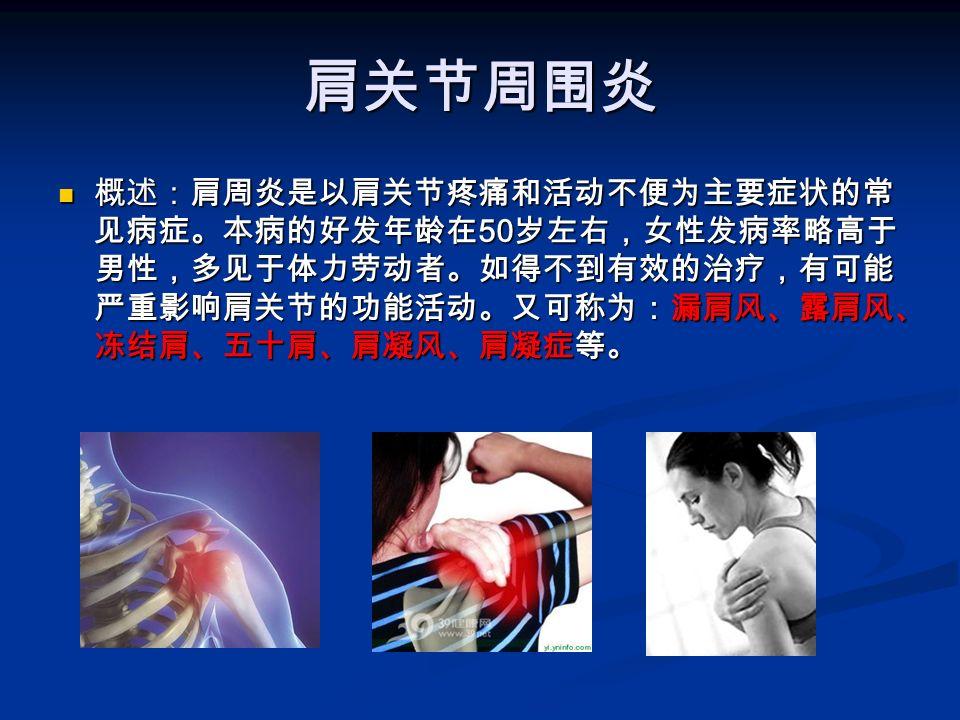 肩关节周围炎 概述:肩周炎是以肩关节疼痛和活动不便为主要症状的常 见病症。本病的好发年龄在 50 岁左右,女性发病率略高于 男性,多见于体力劳动者。如得不到有效的治疗,有可能 严重影响肩关节的功能活动。又可称为:漏肩风、露肩风、 冻结肩、五十肩、肩凝风、肩凝症等。 概述:肩周炎是以肩关节疼痛和活动不便为主要症状的常 见病症。本病的好发年龄在 50 岁左右,女性发病率略高于 男性,多见于体力劳动者。如得不到有效的治疗,有可能 严重影响肩关节的功能活动。又可称为:漏肩风、露肩风、 冻结肩、五十肩、肩凝风、肩凝症等。