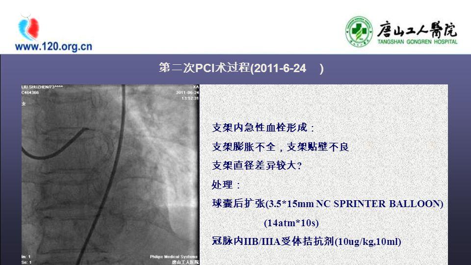 第二次 PCI 术过程 (2011-6-24 ) 支架内急性血栓形成: 支架膨胀不全,支架贴壁不良 支架直径差异较大 .