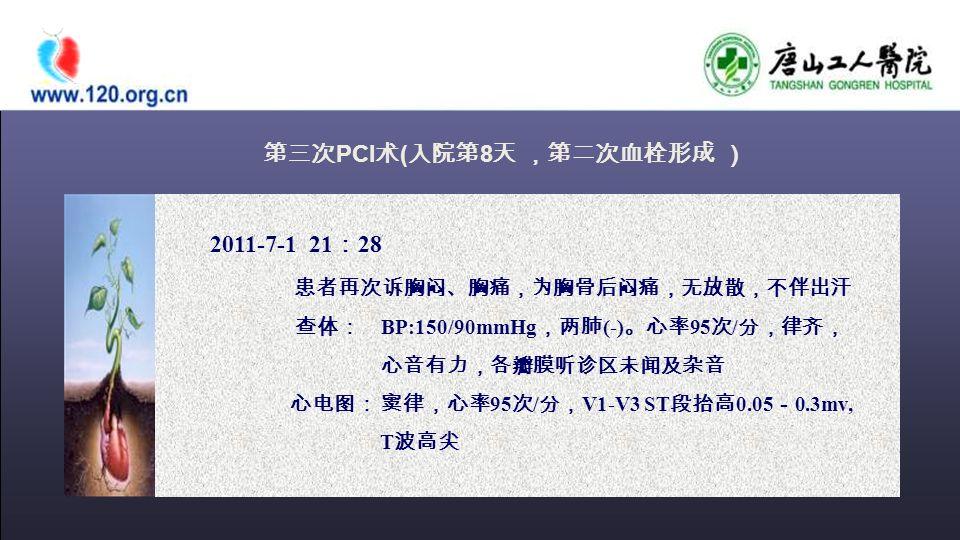 第三次 PCI 术 ( 入院第 8 天 ,第二次血栓形成 ) 2011-7-1 21 : 28 患者再次诉胸闷、胸痛,为胸骨后闷痛,无放散,不伴出汗 查体: BP:150/90mmHg ,两肺 (-) 。心率 95 次 / 分,律齐, 心音有力,各瓣膜听诊区未闻及杂音 心电图: 窦律,心率 95 次 / 分, V1-V3 ST 段抬高 0.05 - 0.3mv, T 波高尖