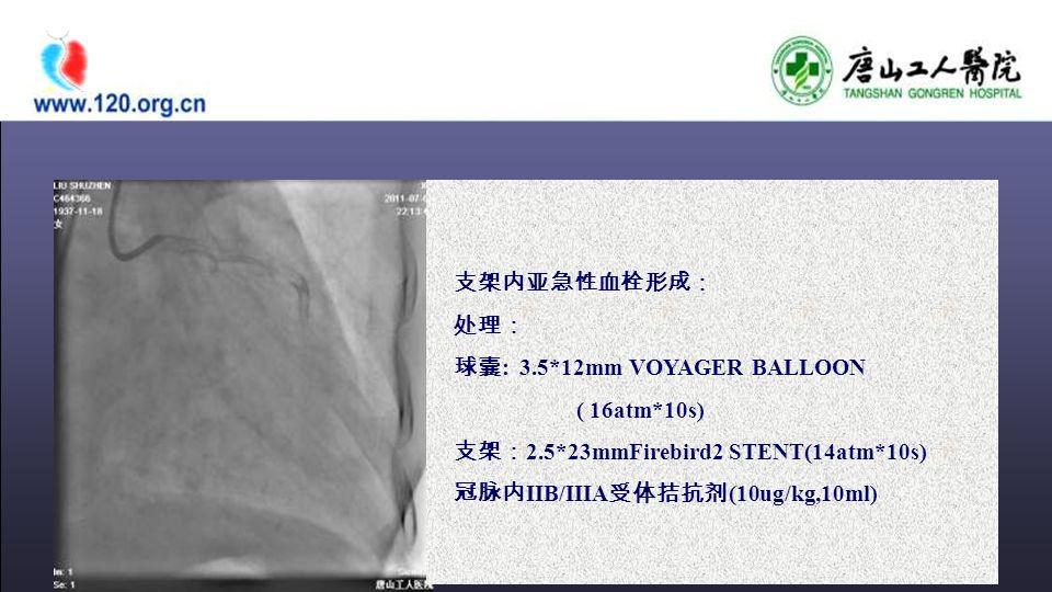 支架内亚急性血栓形成: 处理: 球囊 : 3.5*12mm VOYAGER BALLOON ( 16atm*10s) 支架: 2.5*23mmFirebird2 STENT(14atm*10s) 冠脉内 IIB/IIIA 受体拮抗剂 (10ug/kg,10ml)