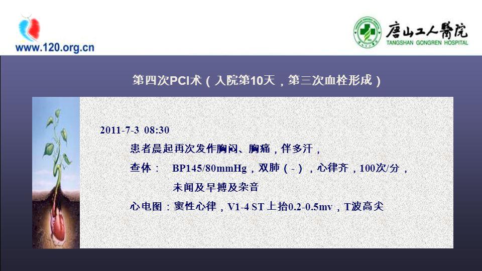 2011-7-3 08:30 患者晨起再次发作胸闷、胸痛,伴多汗, 查体: BP145/80mmHg ,双肺( - ),心律齐, 100 次 / 分, 未闻及早搏及杂音 心电图:窦性心律, V1-4 ST 上抬 0.2-0.5mv , T 波高尖 第四次 PCI 术(入院第 10 天,第三次血栓形成)