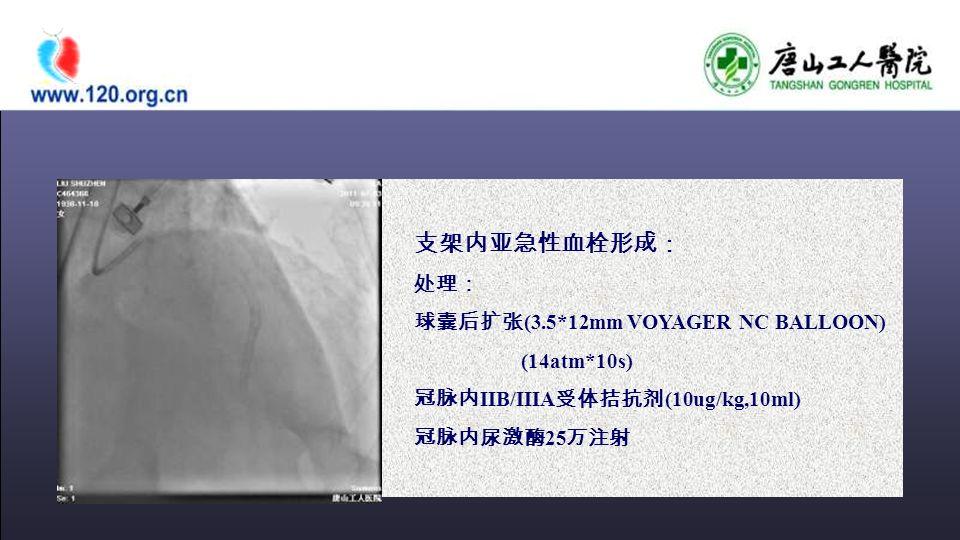 支架内亚急性血栓形成: 处理: 球囊后扩张 (3.5*12mm VOYAGER NC BALLOON) (14atm*10s) 冠脉内 IIB/IIIA 受体拮抗剂 (10ug/kg,10ml) 冠脉内尿激酶 25 万注射
