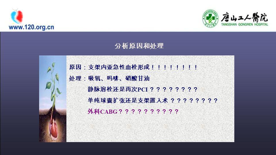 原因:支架内亚急性血栓形成!!!!!!!! 处理:吸氧、吗啡、硝酸甘油 静脉溶栓还是再次 PCI ???????? 单纯球囊扩张还是支架置入术 ???????? 外科 CABG ?????????? 分析原因和处理
