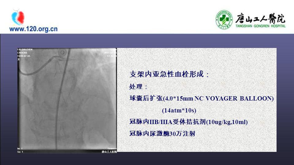 支架内亚急性血栓形成: 处理: 球囊后扩张 (4.0*15mm NC VOYAGER BALLOON) (14atm*10s) 冠脉内 IIB/IIIA 受体拮抗剂 (10ug/kg,10ml) 冠脉内尿激酶 30 万注射
