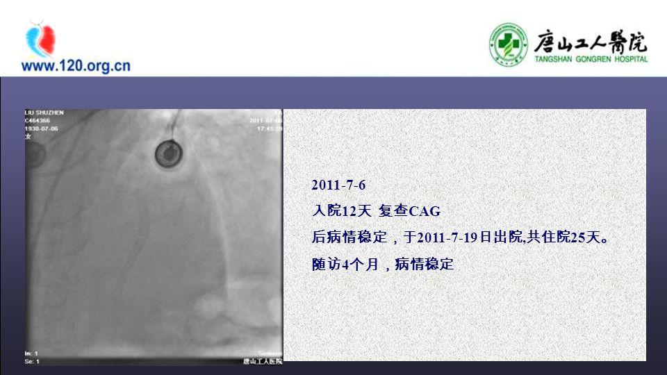 2011-7-6 入院 12 天 复查 CAG 后病情稳定,于 2011-7-19 日出院, 共住院 25 天。 随访 4 个月,病情稳定