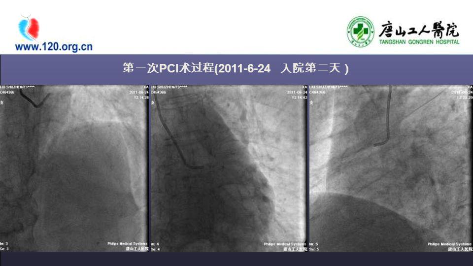 第一次 PCI 术过程 (2011-6-24 入院第二天)