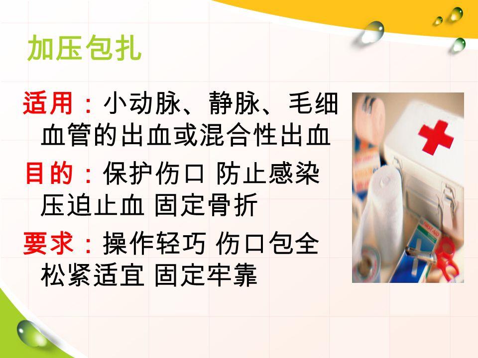 加压包扎 适用:小动脉、静脉、毛细 血管的出血或混合性出血 目的:保护伤口 防止感染 压迫止血 固定骨折 要求:操作轻巧 伤口包全 松紧适宜 固定牢靠