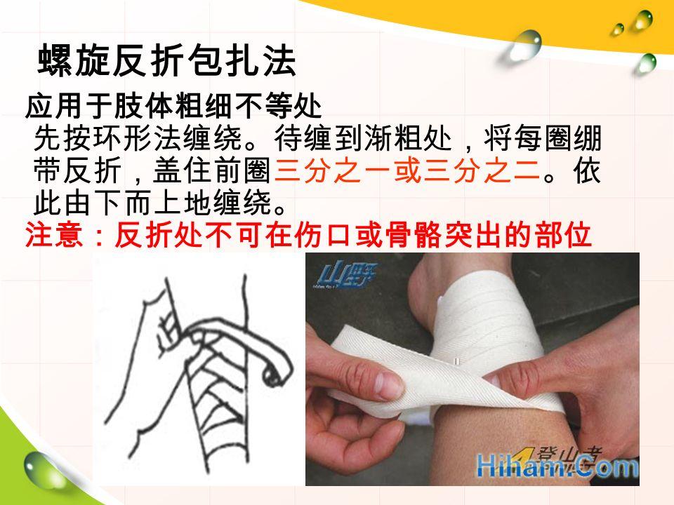 螺旋反折包扎法 应用于肢体粗细不等处 先按环形法缠绕。待缠到渐粗处,将每圈绷 带反折,盖住前圈三分之一或三分之二。依 此由下而上地缠绕。 注意:反折处不可在伤口或骨骼突出的部位