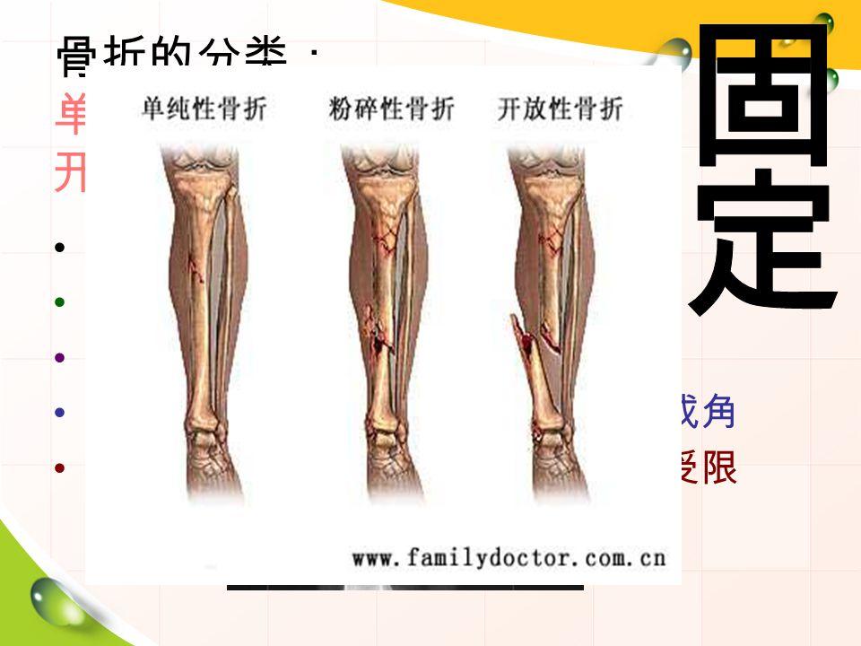 骨折的分类: 单纯性骨折 粉碎性骨折 开放性骨折 骨折的症状: 疼痛 — 局部、不能触摸、明显压痛 肿胀 — 局部明显,或有淤血出血 畸形 — 受伤肢体出现缩短、旋转或成角 功能障碍 — 受伤肢体的功能和活动受限