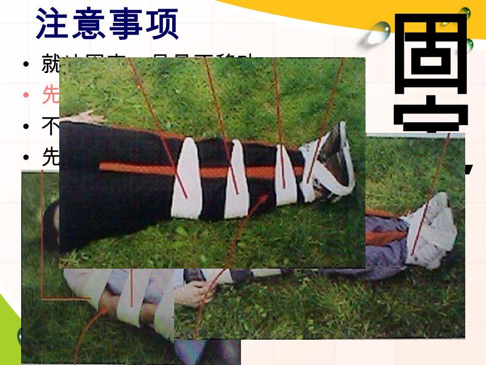 注意事项 就地固定,尽量不移动 先止血,后包扎;若休克,先抢救 不复位、不回纳、不涂药、不冲洗 先固定骨折上端再下端; 上肢曲,下肢伸 固定夹板长度要超过骨折部位上下两个关 节