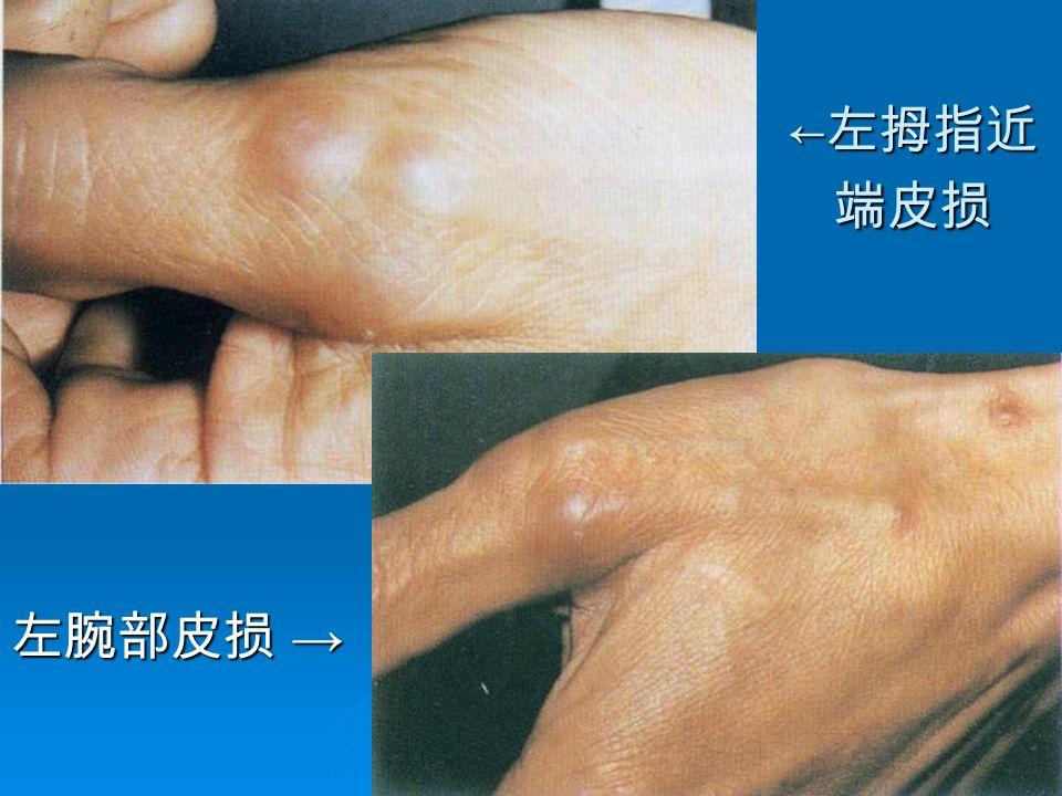 9 ← 左拇指近 端皮损 左腕部皮损 →