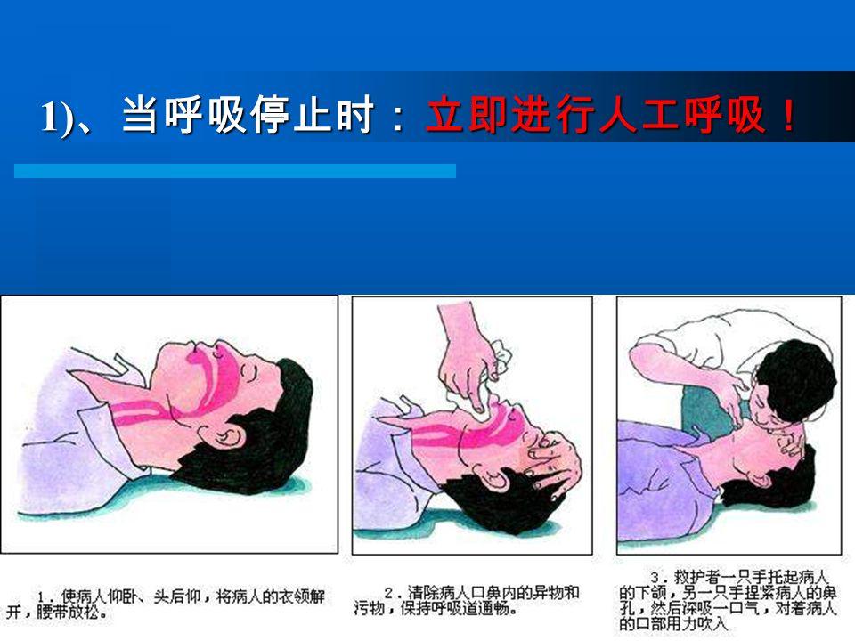 1) 、当呼吸停止时: 立即进行人工呼吸!