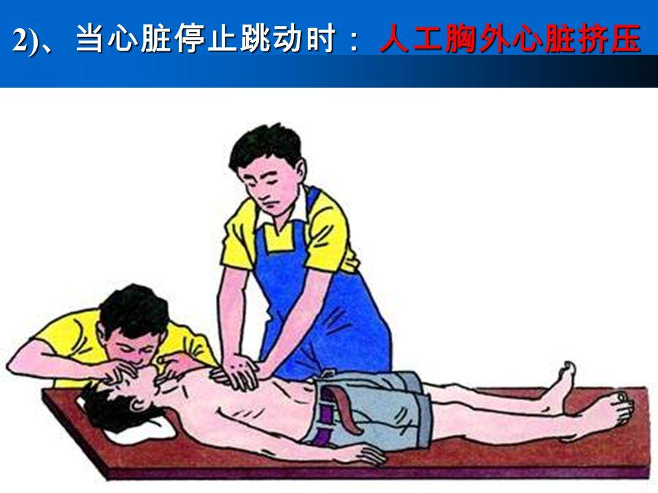 2) 、当心脏停止跳动时: 人工胸外心脏挤压