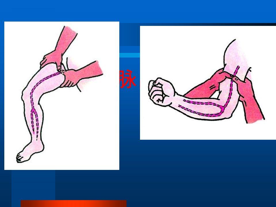大静脉或动脉出血护理