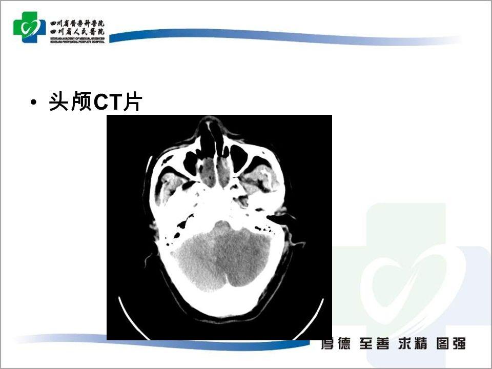 头颅 CT 片