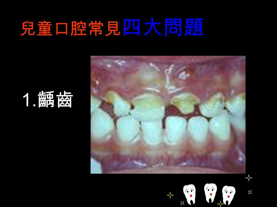 兒童口腔常見 四大問題 1. 齲齒