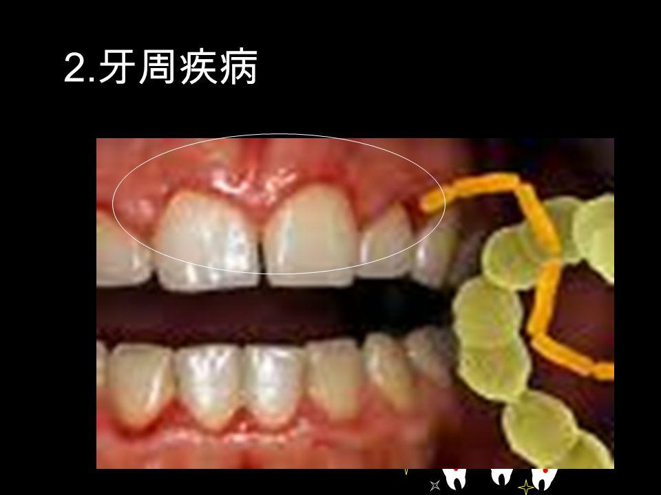 2. 牙周疾病