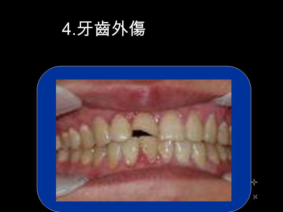 4. 牙齒外傷