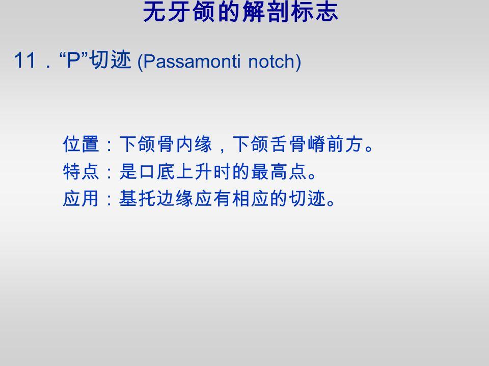 11 . P 切迹 (Passamonti notch) 位置:下颌骨内缘,下颌舌骨嵴前方。 特点:是口底上升时的最高点。 应用:基托边缘应有相应的切迹。 无牙颌的解剖标志