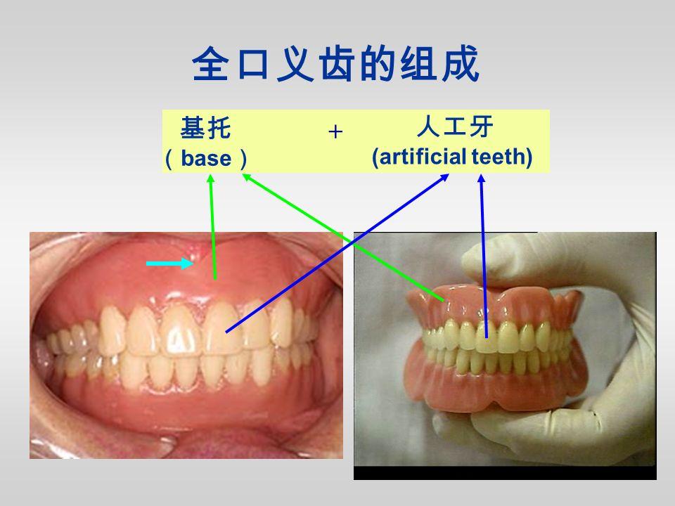 基托 ( base ) 人工牙 (artificial teeth) 全口义齿的组成 