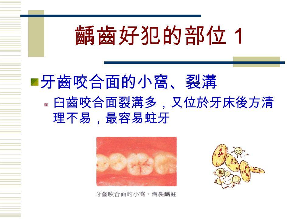 齲齒好犯的部位1 牙齒咬合面的小窩、裂溝 臼齒咬合面裂溝多,又位於牙床後方清 理不易,最容易蛀牙