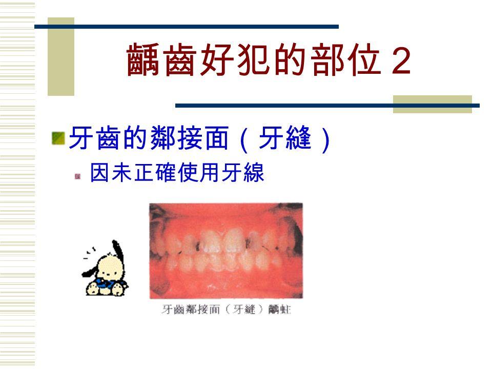 齲齒好犯的部位2 牙齒的鄰接面(牙縫) 因未正確使用牙線
