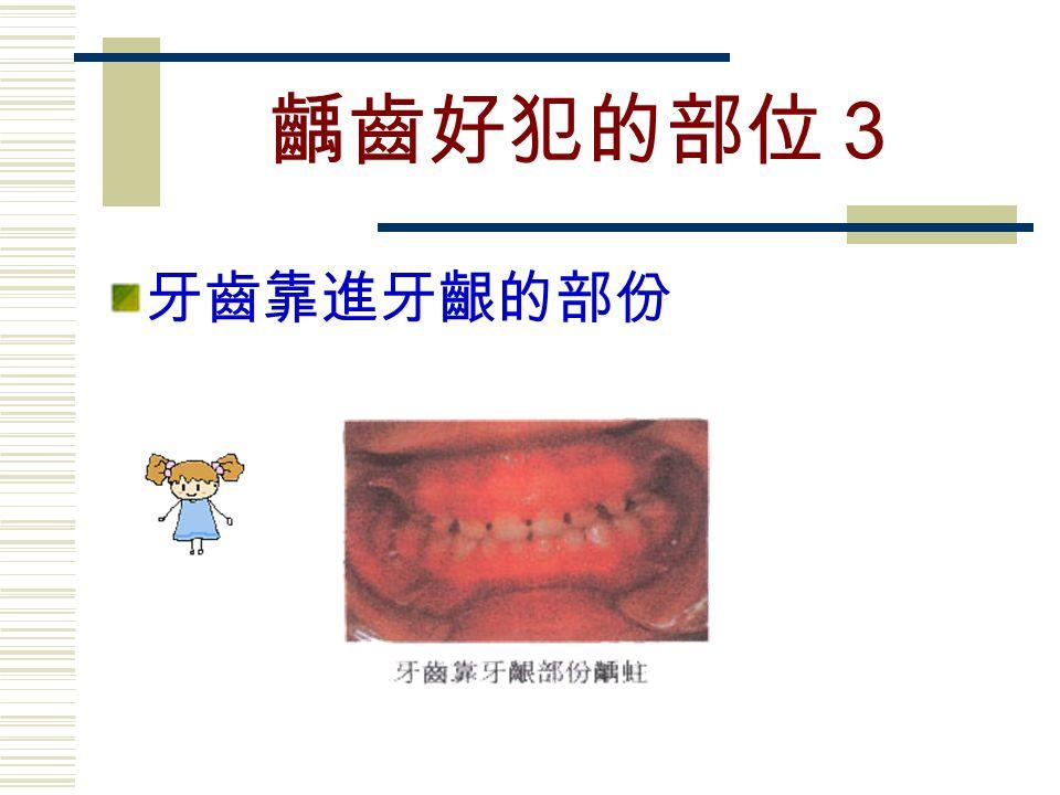 齲齒好犯的部位3 牙齒靠進牙齦的部份