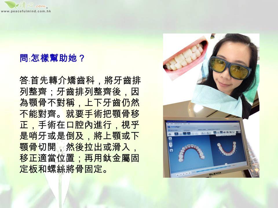 問﹕你手上的 3D 模型,是一個真實個案, 她的情如何? 答﹕這是一個女孩子的模型,她出現倒及、 臉歪,牙齒咬合不正,因肌肉受力不均, 因而出現痛楚不適。