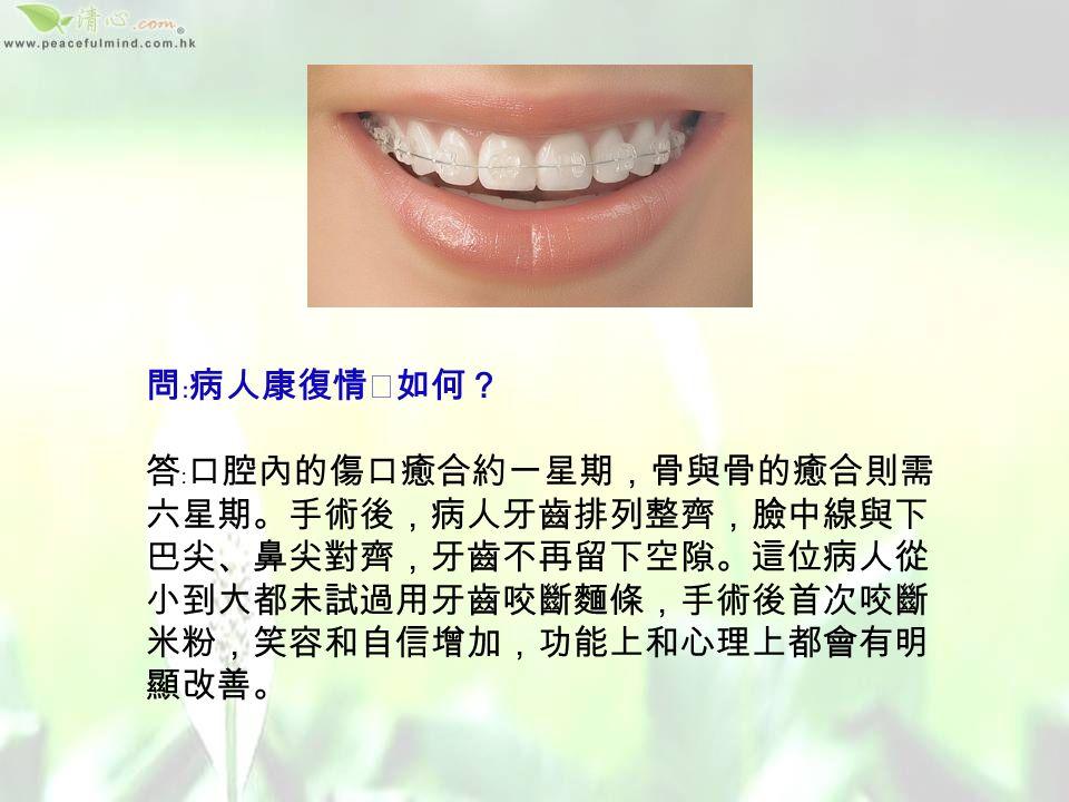 問﹕怎樣幫助她? 答﹕首先轉介矯齒科,將牙齒排 列整齊;牙齒排列整齊後,因 為顎骨不對稱,上下牙齒仍然 不能對齊。就要手術把顎骨移 正,手術在口腔內進行,視乎 是哨牙或是倒及,將上顎或下 顎骨切開,然後拉出或滑入, 移正適當位置;再用鈦金屬固 定板和螺絲將骨固定。