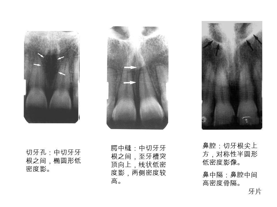 腭中缝:中切牙牙 根之间,至牙槽突 顶向上,线状低密 度影,两侧密度较 高。 鼻腔:切牙根尖上 方,对称性半圆形 低密度影像。 鼻中隔:鼻腔中间 高密度骨隔。 切牙孔:中切牙牙 根之间,椭圆形低 密度影。 牙片