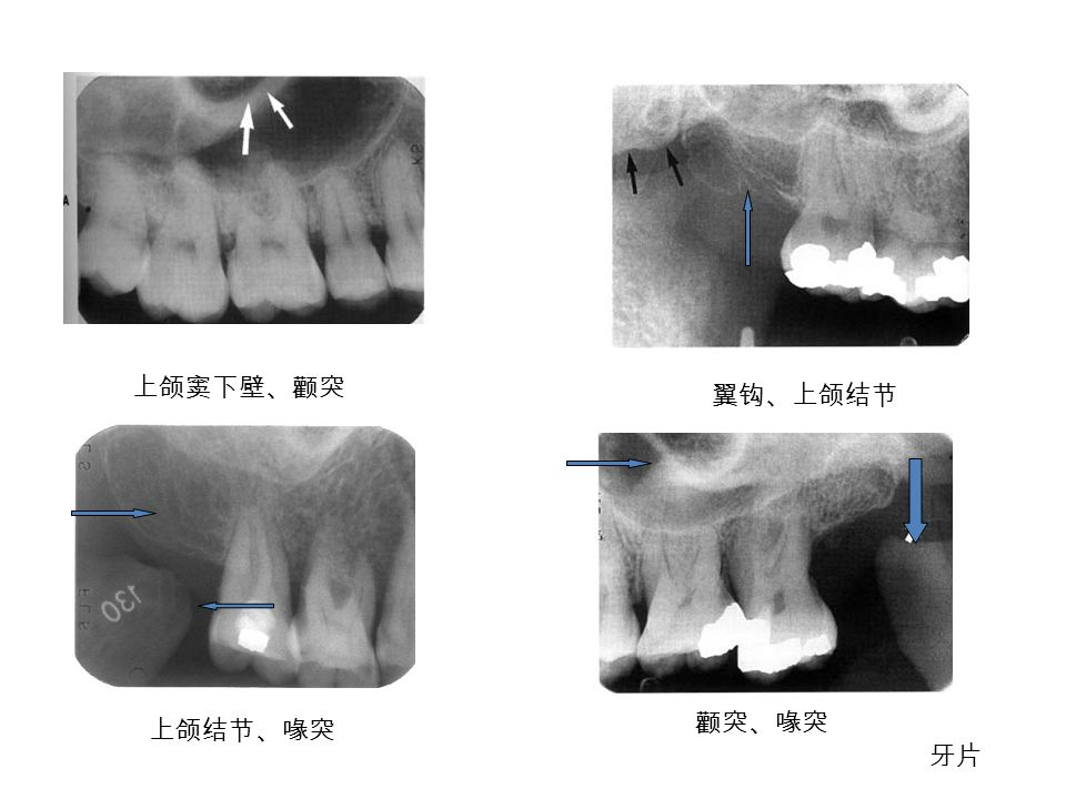 上颌窦下壁、颧突 翼钩、上颌结节 颧突、喙突 牙片 上颌结节、喙突