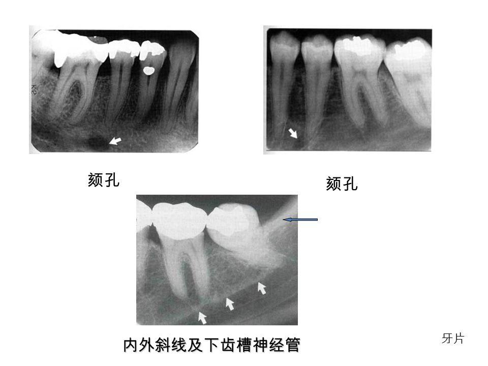 颏孔 牙片 颏孔 内外斜线及下齿槽神经管