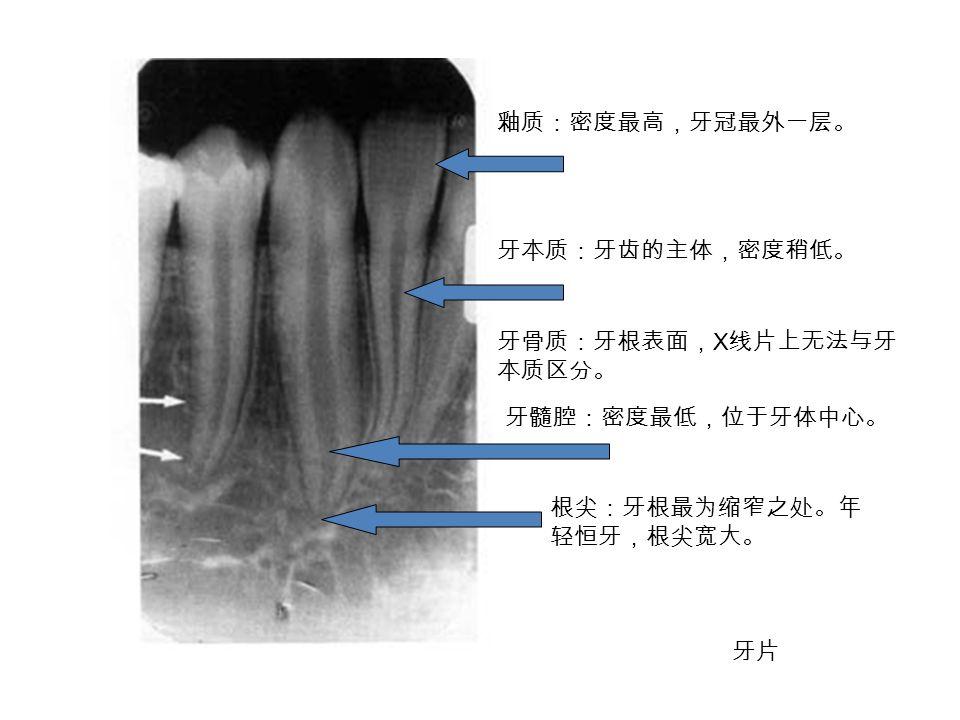 釉质:密度最高,牙冠最外一层。 牙本质:牙齿的主体,密度稍低。 牙骨质:牙根表面, X 线片上无法与牙 本质区分。 牙髓腔:密度最低,位于牙体中心。 根尖:牙根最为缩窄之处。年 轻恒牙,根尖宽大。 牙片