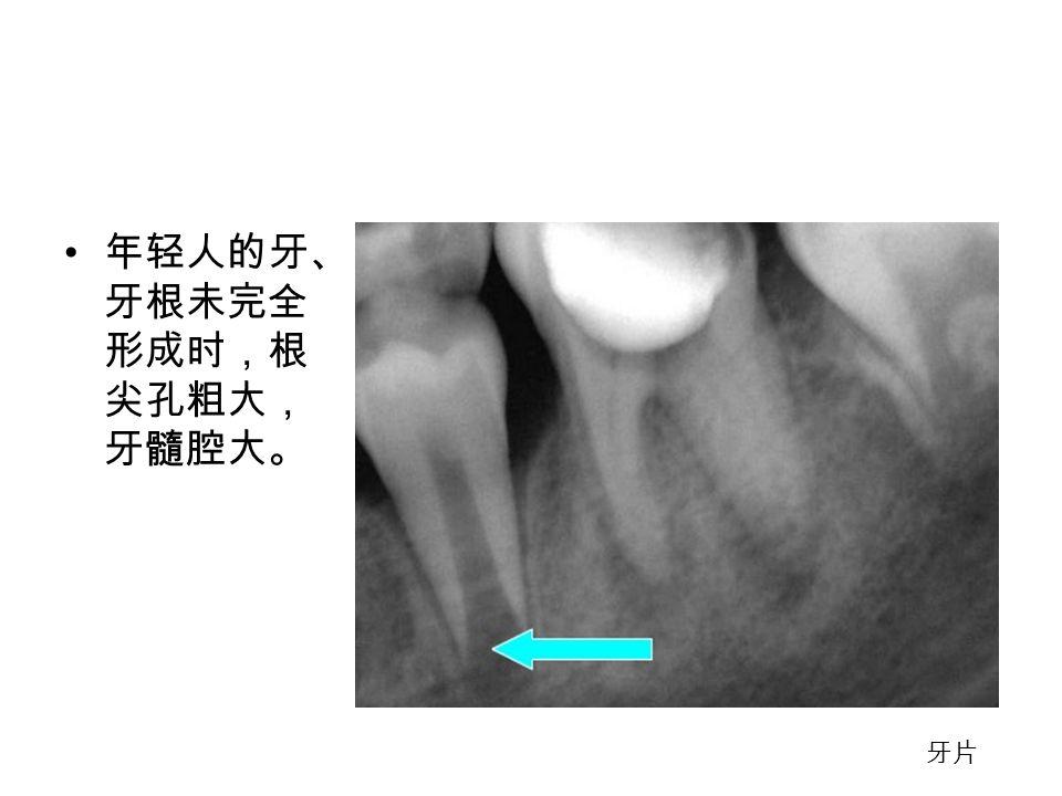 年轻人的牙、 牙根未完全 形成时,根 尖孔粗大, 牙髓腔大。 牙片