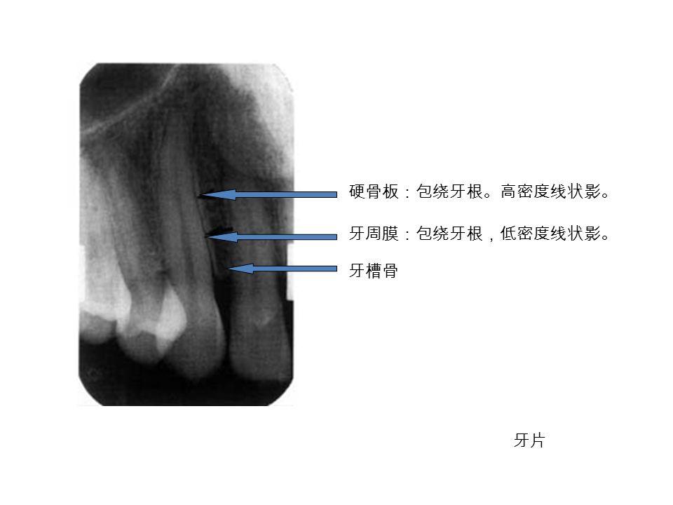 硬骨板:包绕牙根。高密度线状影。 牙周膜:包绕牙根,低密度线状影。 牙槽骨 牙片