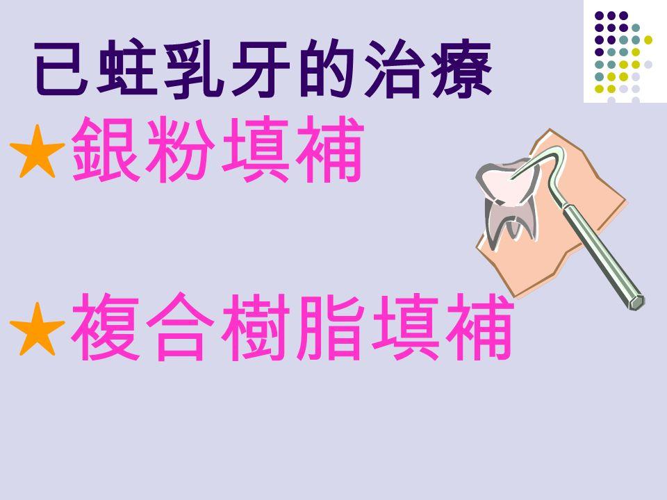 已蛀乳牙的治療 ★銀粉填補 ★複合樹脂填補