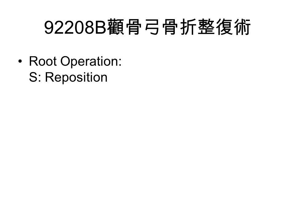 92208B 顴骨弓骨折整復術 Root Operation: S: Reposition