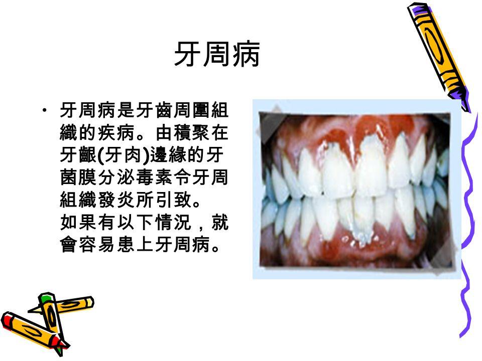 牙周病 牙周病是牙齒周圍組 織的疾病。由積聚在 牙齦 ( 牙肉 ) 邊緣的牙 菌膜分泌毒素令牙周 組織發炎所引致。 如果有以下情況,就 會容易患上牙周病。