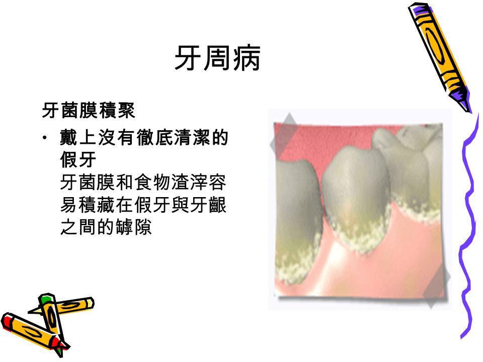 牙周病 牙菌膜積聚 戴上沒有徹底清潔的 假牙 牙菌膜和食物渣滓容 易積藏在假牙與牙齦 之間的罅隙