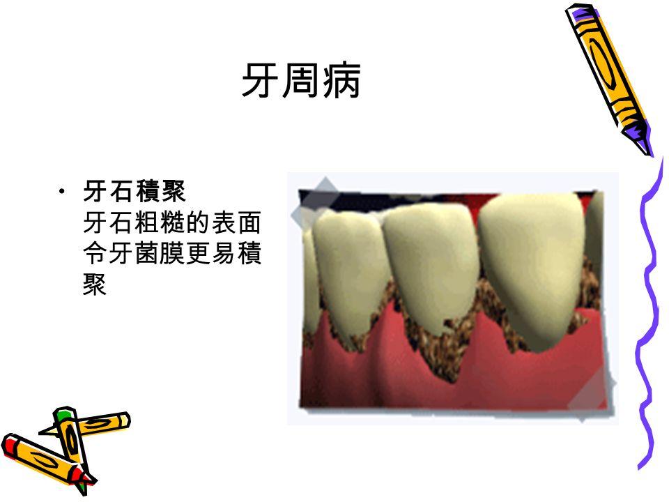 牙周病 牙石積聚 牙石粗糙的表面 令牙菌膜更易積 聚