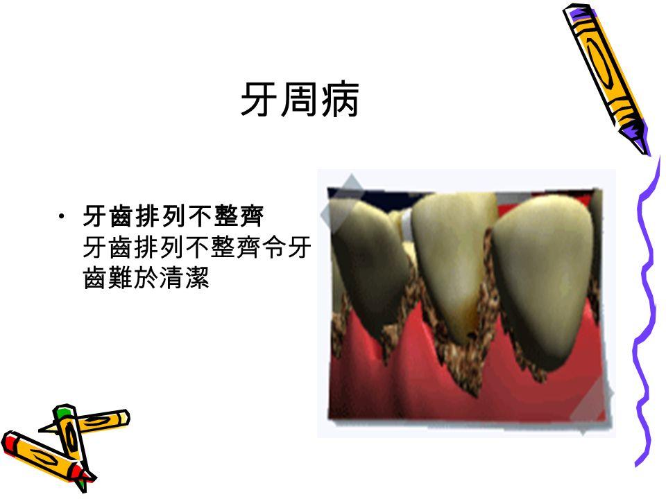 牙周病 牙齒排列不整齊 牙齒排列不整齊令牙 齒難於清潔