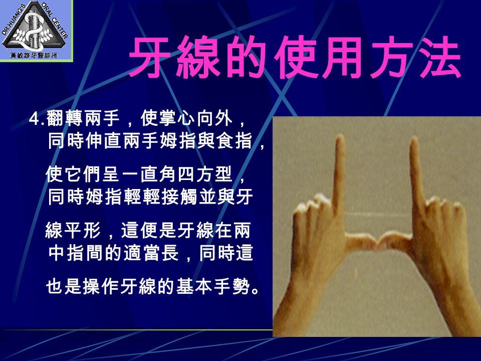 牙線的使用方法 4. 翻轉兩手,使掌心向外, 同時伸直兩手姆指與食指, 使它們呈一直角四方型, 同時姆指輕輕接觸並與牙 線平形,這便是牙線在兩 中指間的適當長,同時這 也是操作牙線的基本手勢。