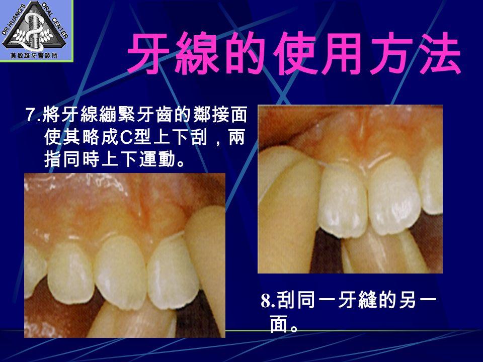 牙線的使用方法 7. 將牙線繃緊牙齒的鄰接面 使其略成 C 型上下刮,兩 指同時上下運動。 8. 刮同一牙縫的另一 面。
