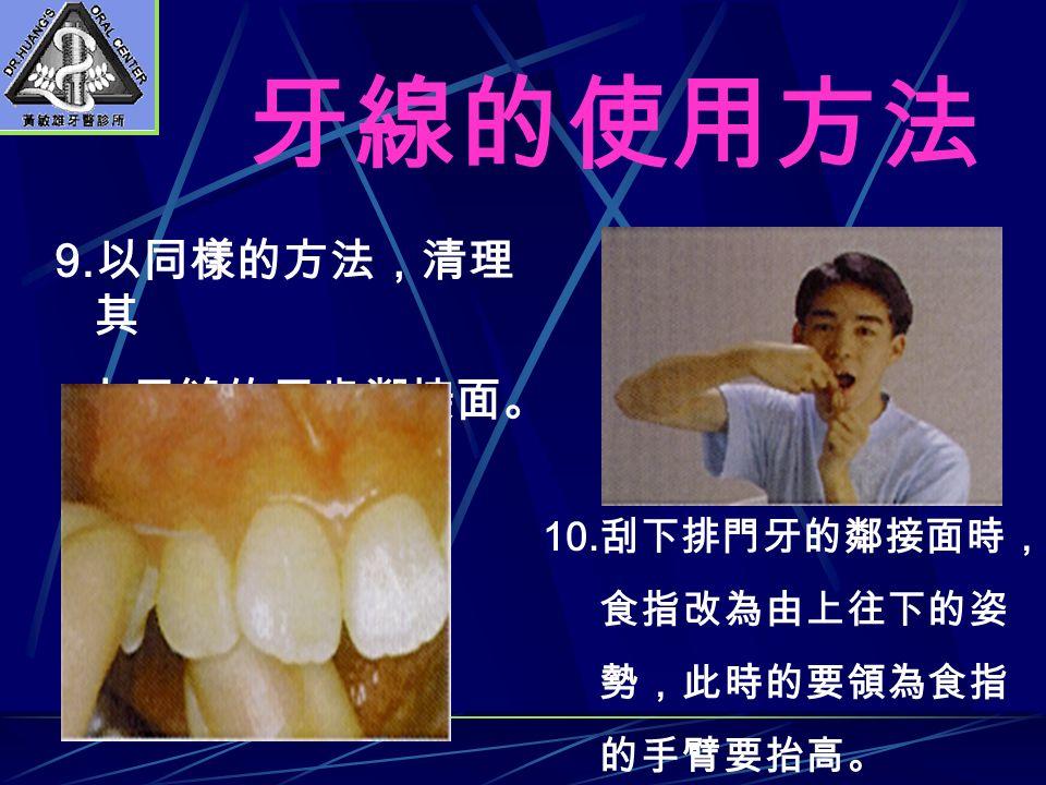 9. 以同樣的方法,清理 其 它牙縫的牙齒鄰接面。 10. 刮下排門牙的鄰接面時, 食指改為由上往下的姿 勢,此時的要領為食指 的手臂要抬高。 牙線的使用方法
