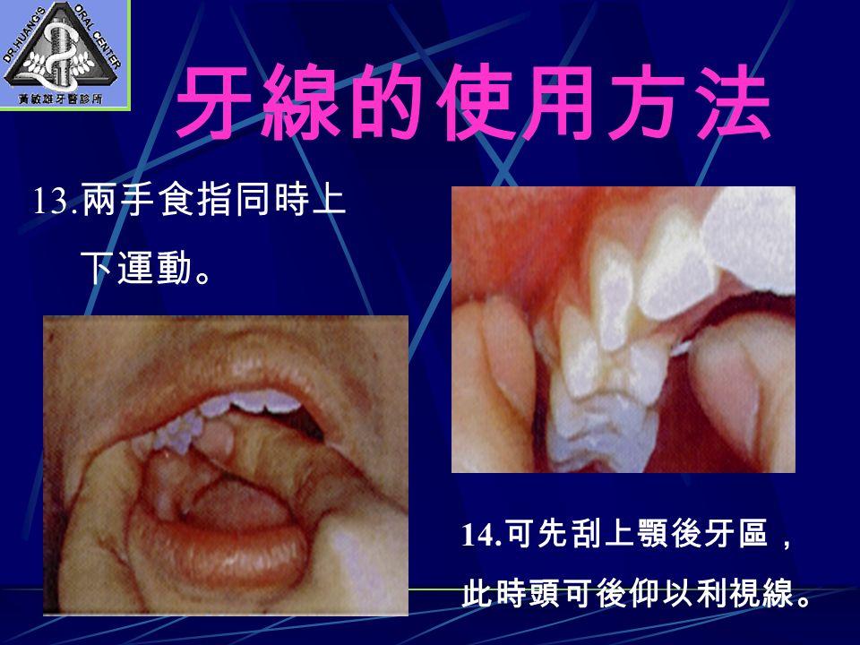 牙線的使用方法 13. 兩手食指同時上 下運動。 14. 可先刮上顎後牙區, 此時頭可後仰以利視線。