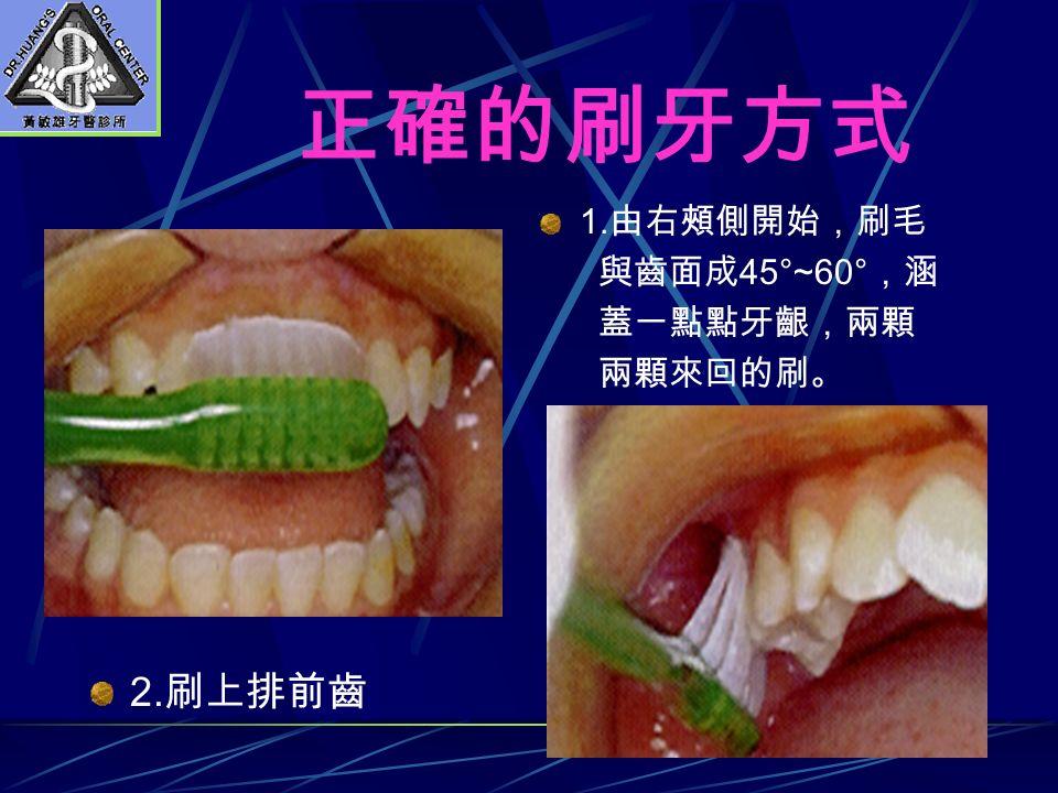 正確的刷牙方式 1. 由右頰側開始,刷毛 與齒面成 45°~60° ,涵 蓋一點點牙齦,兩顆 兩顆來回的刷。 2. 刷上排前齒