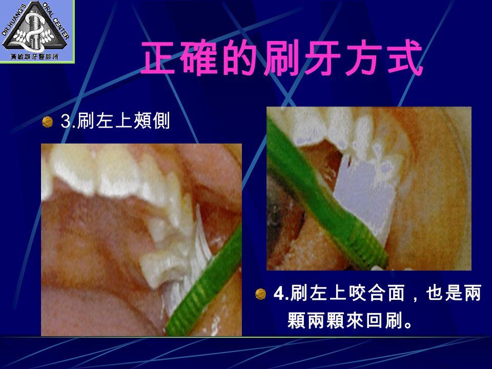 正確的刷牙方式 3. 刷左上頰側 4. 刷左上咬合面,也是兩 顆兩顆來回刷。