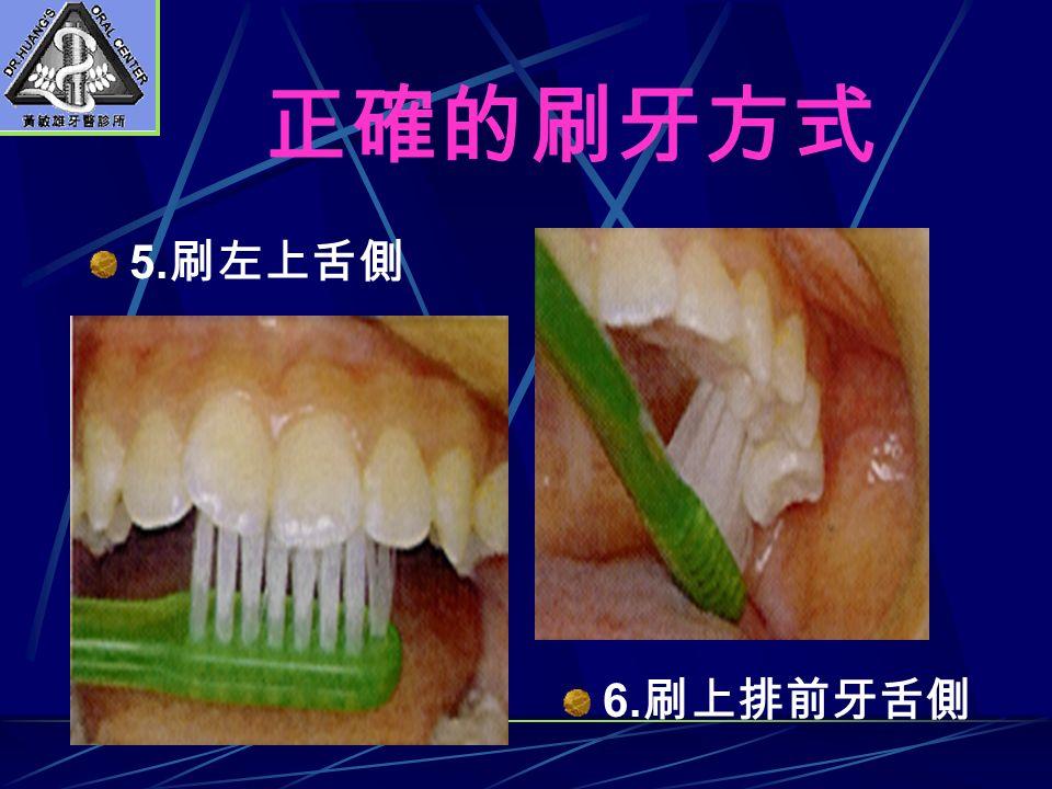 正確的刷牙方式 5. 刷左上舌側 6. 刷上排前牙舌側
