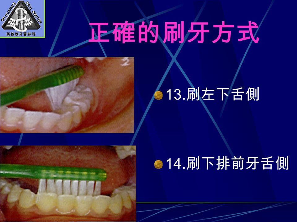 13. 刷左下舌側 14. 刷下排前牙舌側