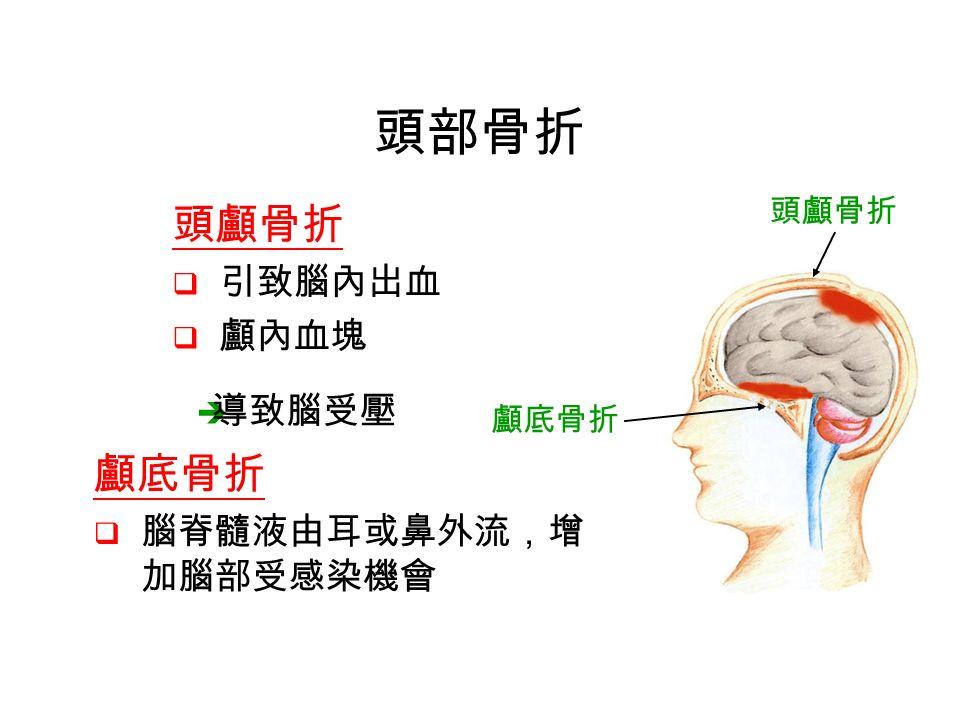 頭顱骨折  引致腦內出血  顱內血塊 頭部骨折  導致腦受壓 顱底骨折  腦脊髓液由耳或鼻外流,增 加腦部受感染機會 頭顱骨折 顱底骨折